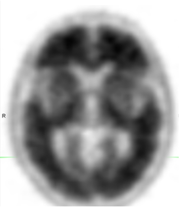 The loss of contrast between gray and white matter in this brain scan indicates a high uptake of Amyvid and the presence of amyloid plaques.