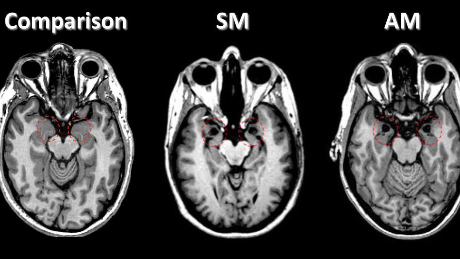 In these brain scans, amygdala damage can be seen in three patients (known as SM, AM and BG) with Urbach-Wiethe disease. See the dark spots within the areas circled in red. A healthy person is shown (left) for comparison. (Iowa Neurological Patient Registry, University of Iowa, Courtesy of Nature)