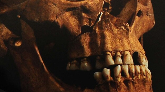 An enlarged image of the skull identified as that of King Richard III. Jo Appleby, a lecturer in human bioarchaeology at the University of Leicester, is pointing to a detail. (PA Photos /Landov)