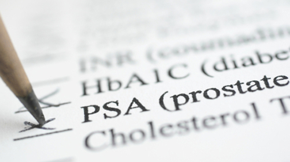 When is the right time to check the PSA box?
