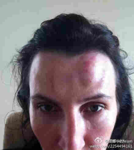This was one of the photos American Kim Lee posted online after her Chinese husband, a famous English teacher, beat her. Her decision to go public marks a milestone in the fight against domestic abuse in China.