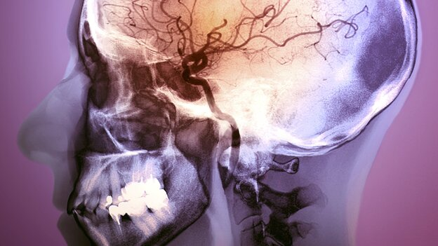 An angiogram of a 48-year- old patient after treatment for a stroke. A blockage was targeted with clot-busting drugs using a catheter. (Science Source)