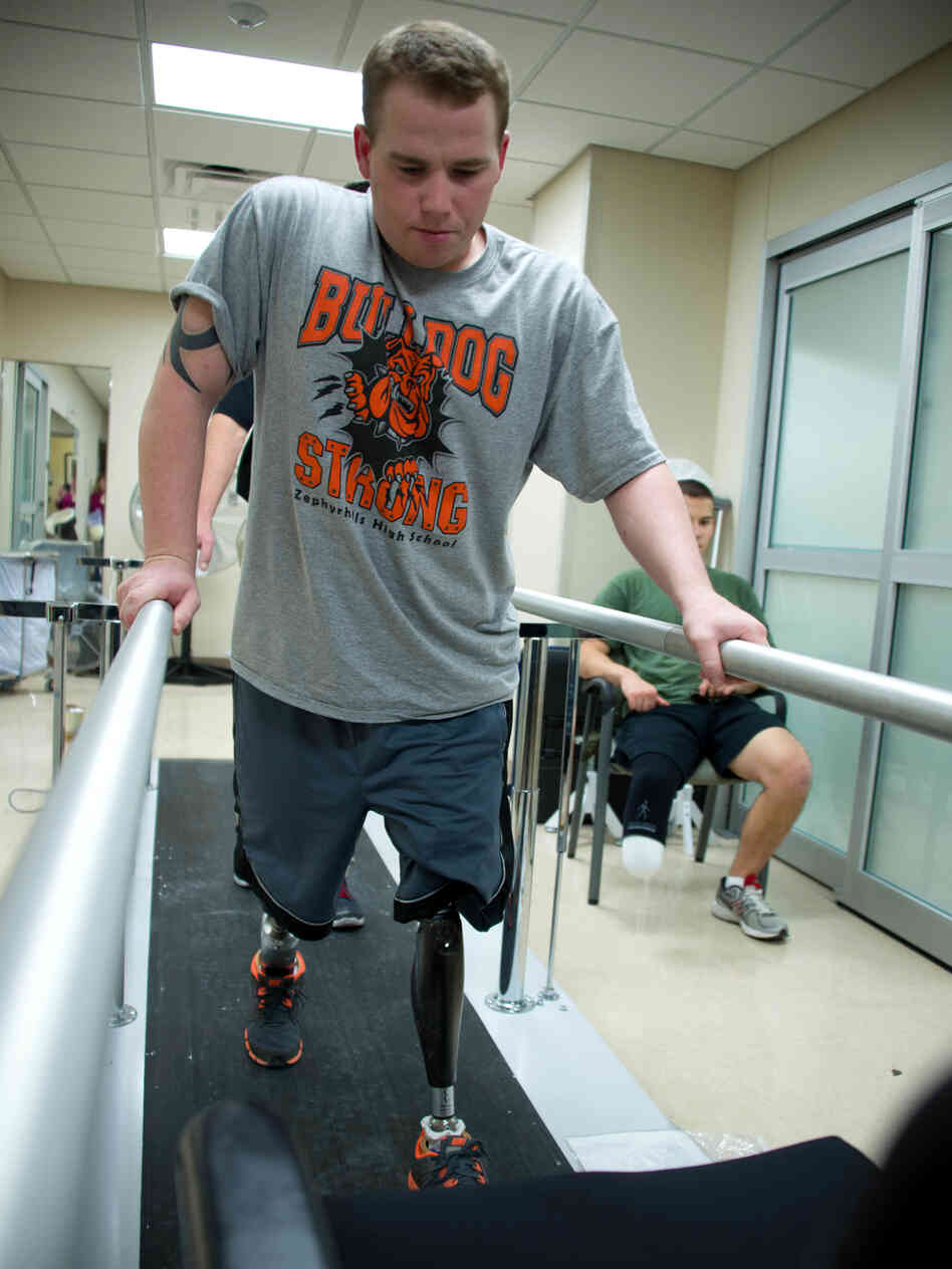 Jeffries takes his first steps on prosthetic legs duri