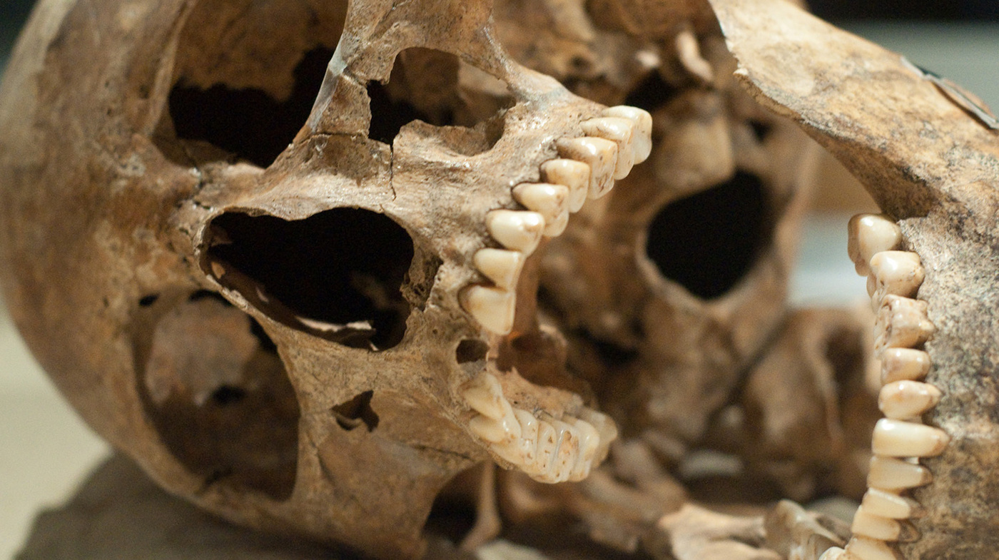 Ancient Chompers Were Healthier Than Ours Shots Health
