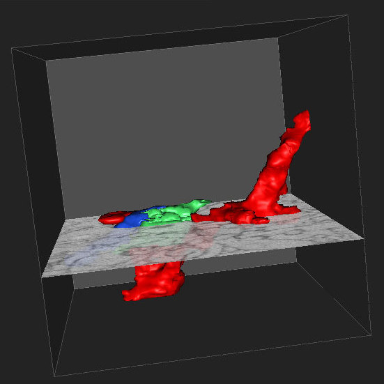 In the EyeWire game, participants identify different neurons by coloring in their shapes using a Web-based 3-D interface.