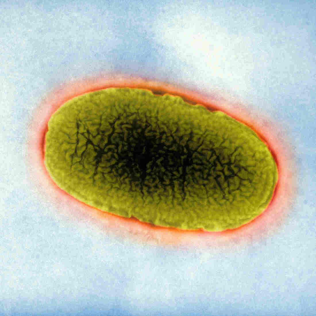Klebsiella pneumoniae, seen here with an electron microscope, are the most common superbugs causing highly drug-resistant infections in hospitals.