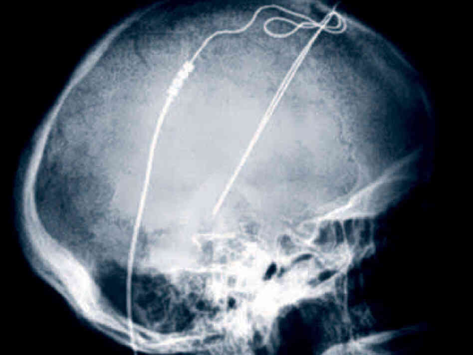 An X-ray of electrodes implanted in the brain of a Parkinson's patient at the Cleveland Clinic. Now deep brain stimulation like this is being tried experimentally in a few patients with chronic, serious anorexia.