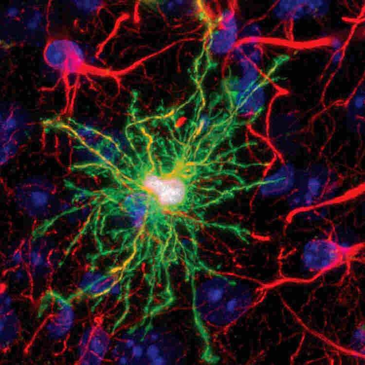 This image shows a human glial cell (green) among normal mouse glial cells (red). The human cell is larger, sends out more fibers and has more connections than do mouse cells. Mice with this type of human cell implanted in their brains perform better on learning and memory tests than do typical mice.