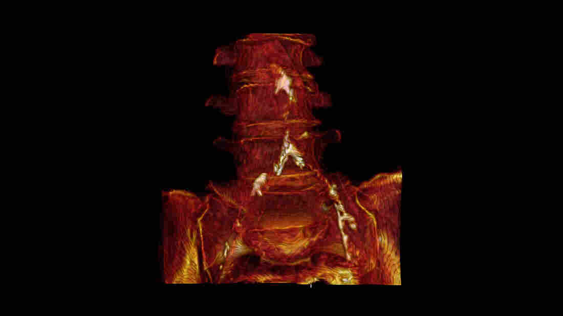 A 3-D reconstruction of Mummy 38's CT scans shows calcification in her aorta and iliac arteries.