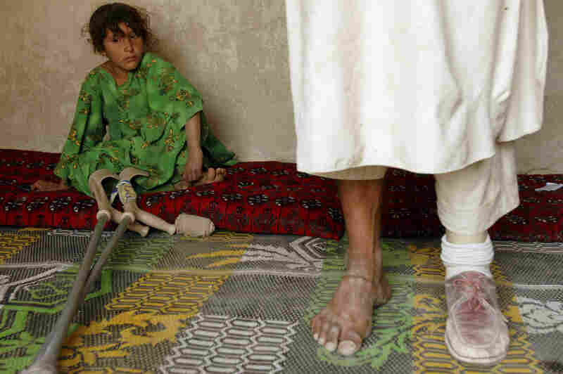 Abdul Malak, who lost his leg in a mine blast during grazing, stands on a prosthetic limb — with his daughter nearby — in a Parwan province village north of Kabul, 2008.