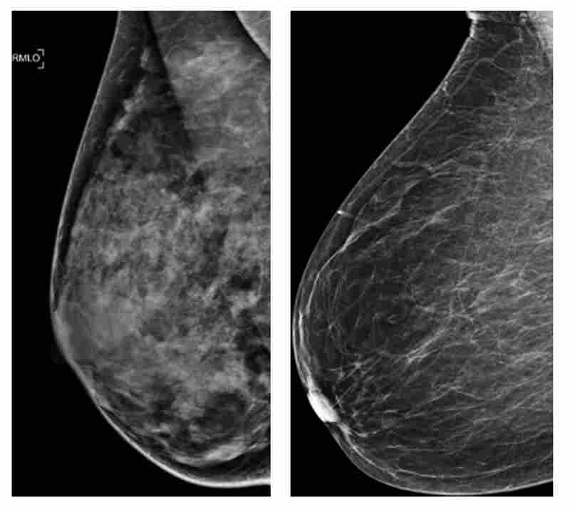 These two photos shows an extremely dense breast (left) and a least dense breast. A new study indicates that women under 50 with dense breast tissue can benefit from mammograms.