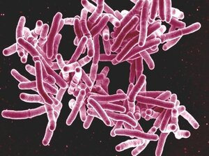 About a third of the world's population is thought to be infected with Mycobacterium tuberculosis, but only a sm