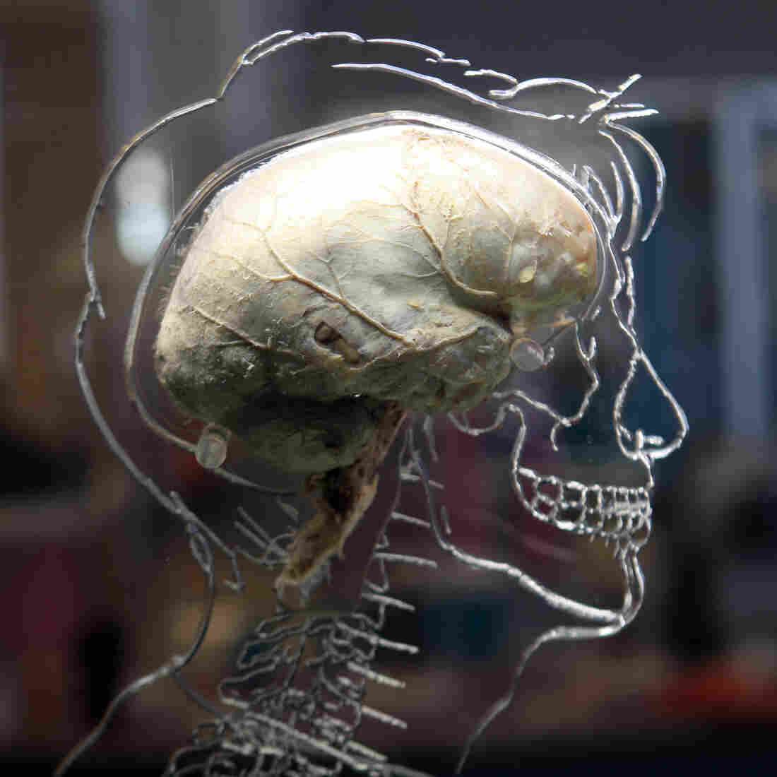 What's Behind The Invention Of 'Neuroscience Care'?