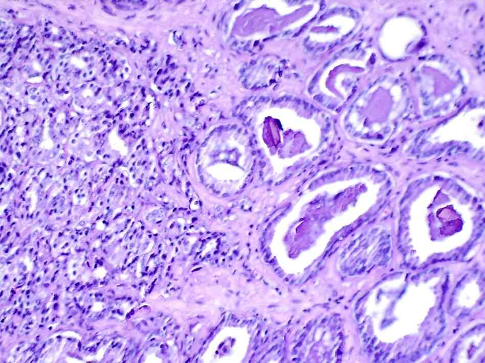 A microscopic image of prostate cancer. Researchers have found new genetic markers that flag a person's susceptibility to the disease, as well as breast and ovarian cancer.