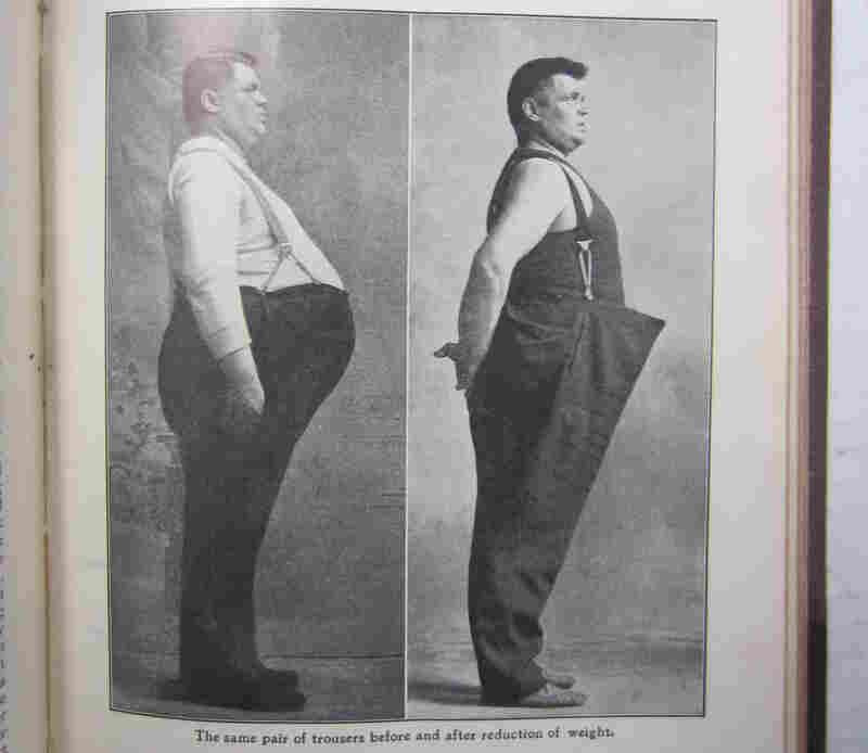 """""""The same pair of trousers before and after reduction of weight"""" from a Bernarr Macfadden publication in 1909."""
