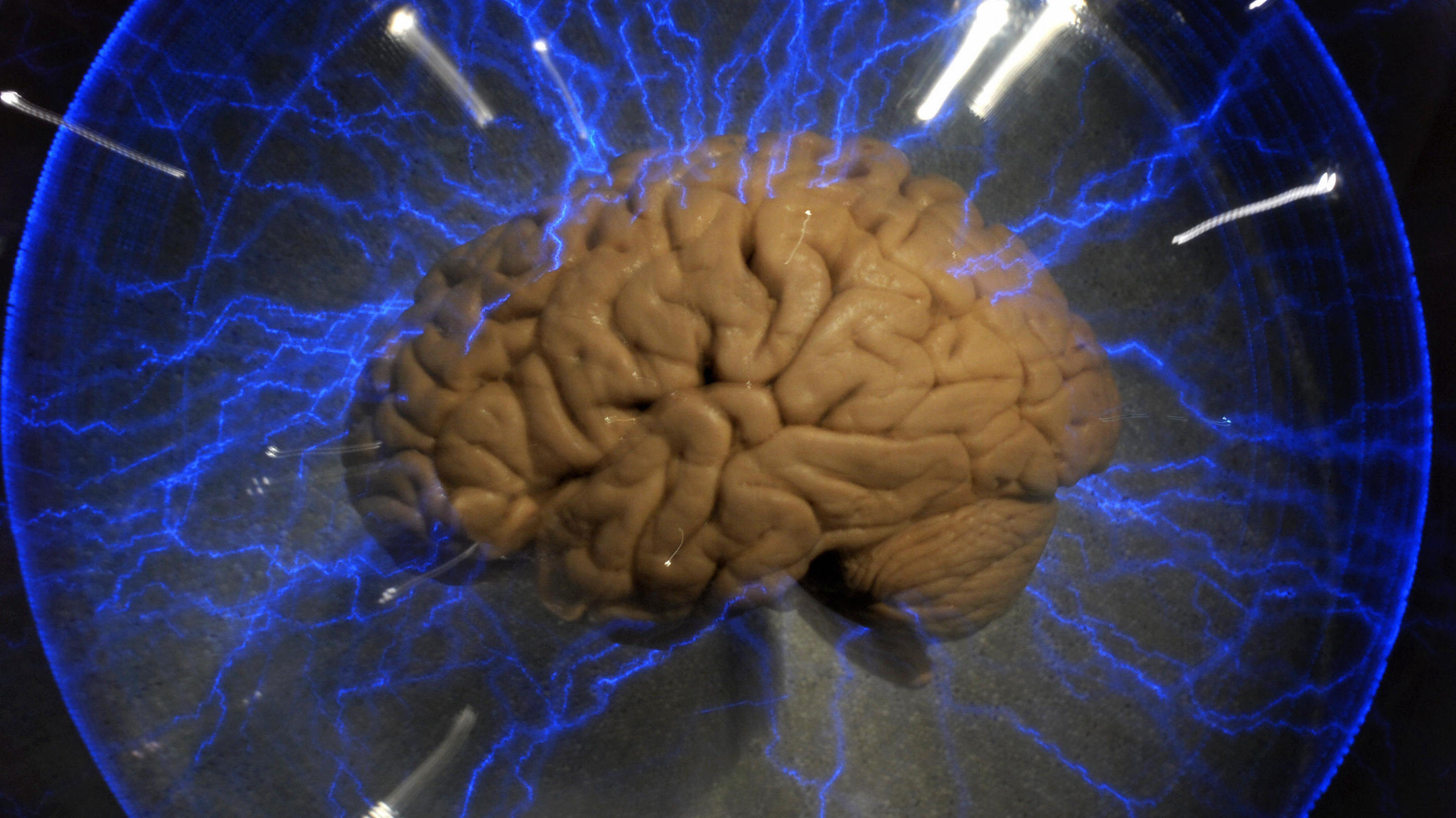 Obama Says $100 Million Will Be Invested In Brain-Mapping Initiative