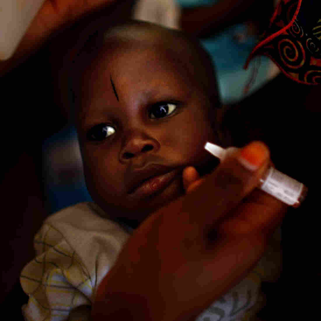 A child is immunized against polio at the health clinic in a farming village in northern Nigeria. The procedure involves pinching two drops of the vaccine into the child's mouth. For full protection, the child needs three doses, spaced out over time.