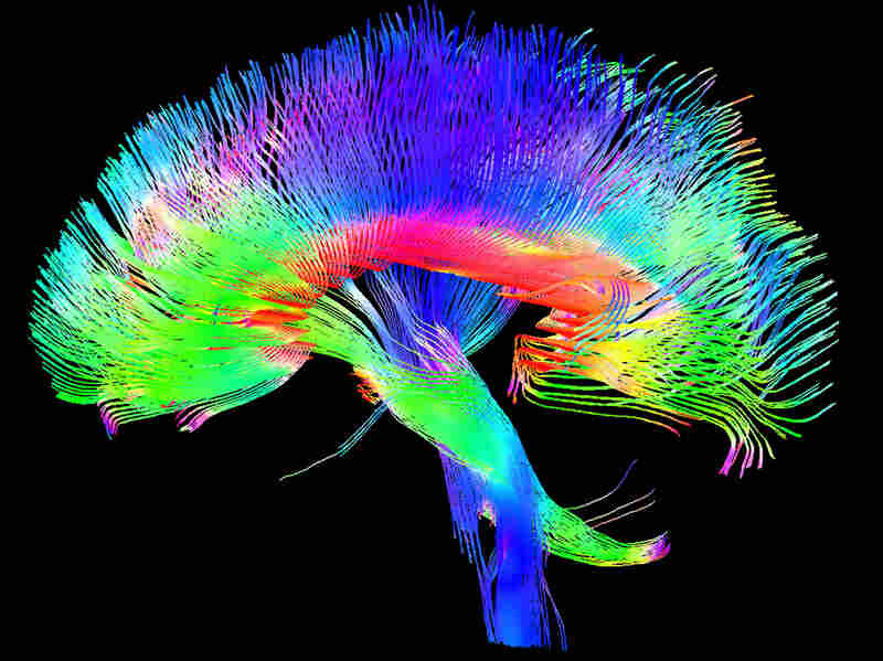 A colored 3-D MRI scan of the brain's white matter pathways traces connections between cells in the cerebrum and the brainstem.