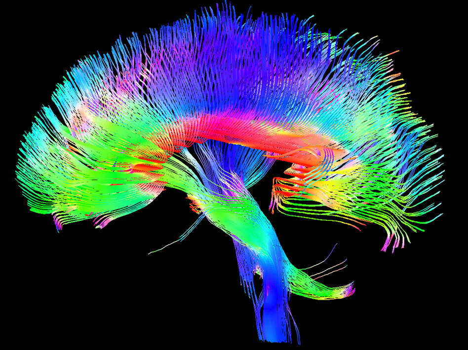 A colored 3-D MRI scan of the brain's white matter pathways traces connections between cells in the cerebrum and the brainstem. ( Tom Barrick, Chris Clark, SGHMS /Science Source)