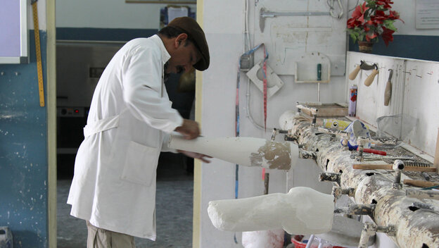 A technician shapes a cast mold for a prosthetic limb at the Red Cross orthopedic clinic in Kabul. The clinic produces about 2,000 prosthetic limbs each year.