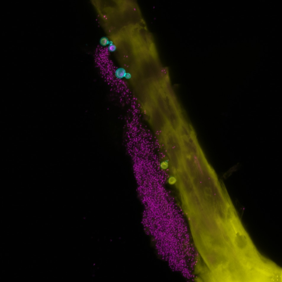 Bacteria (magenta) and fungi (cyan) on a human hair (yellow).