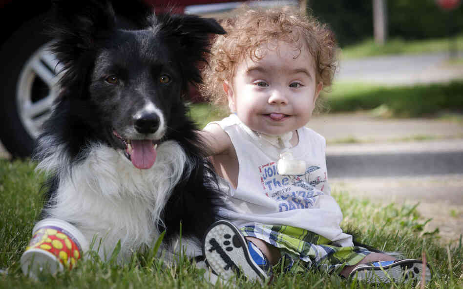 Kaiba Gionfriddo, who breathes with help from a splint created by a 3-D printer, plays with his family dog, Bandit, at his Youngstown, Ohio, home.