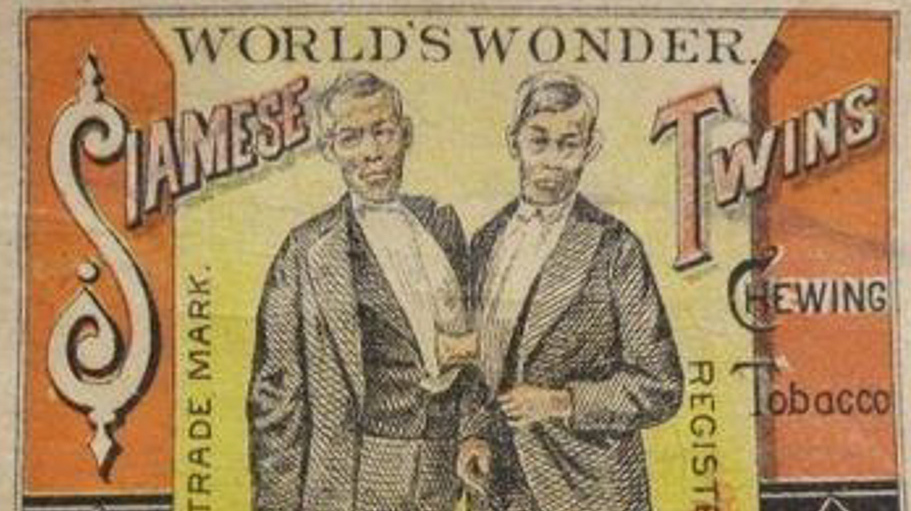 Siamese Twins Still Fascinate Two Centuries Later