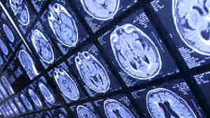 Your brain will appreciate even a modest improvement in stroke risk factors.