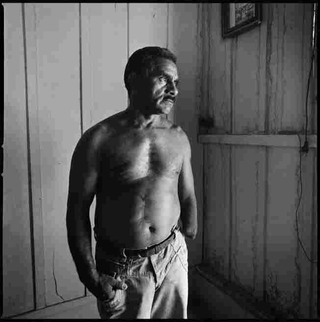 Lauro Santos is a Brazilian farmer who lost his arm when he grabbed an army grenade by mistake during the early 1970s. His brother was killed in the incident. He is photographed here in his home in Sao Joao do Araguaia, Brazil, August 2011.
