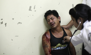A man reacts as a doctor treats his wounds after he had been attacked by a gang in San Pedro Sula, on March 28.