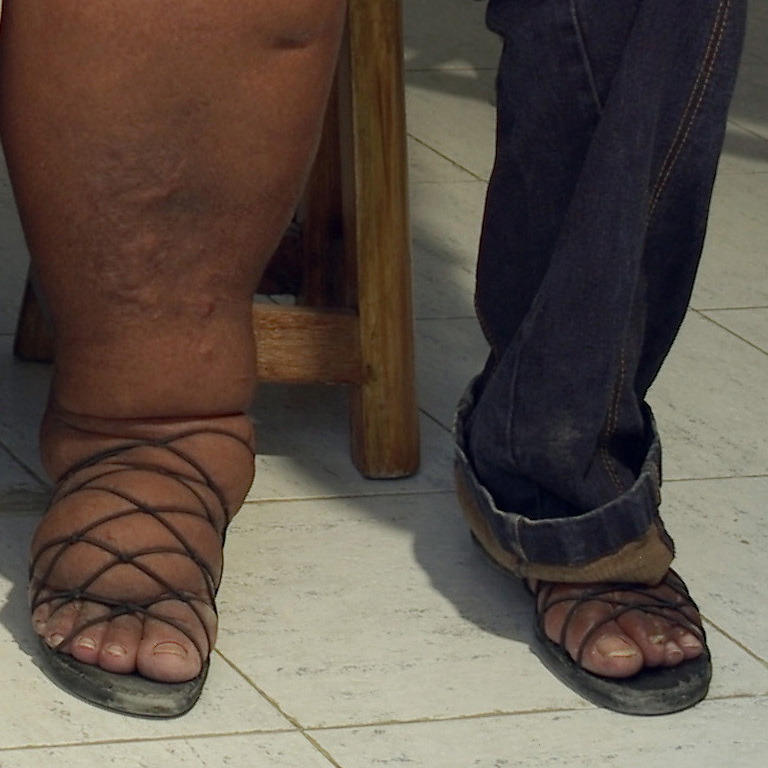 Two women with elephantiasis wait at a hospital in Leogane, Haiti, in May 2012.