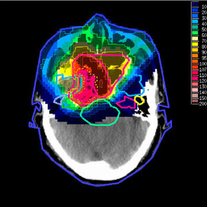 An image with radiation doses from proton therapy superimposed.