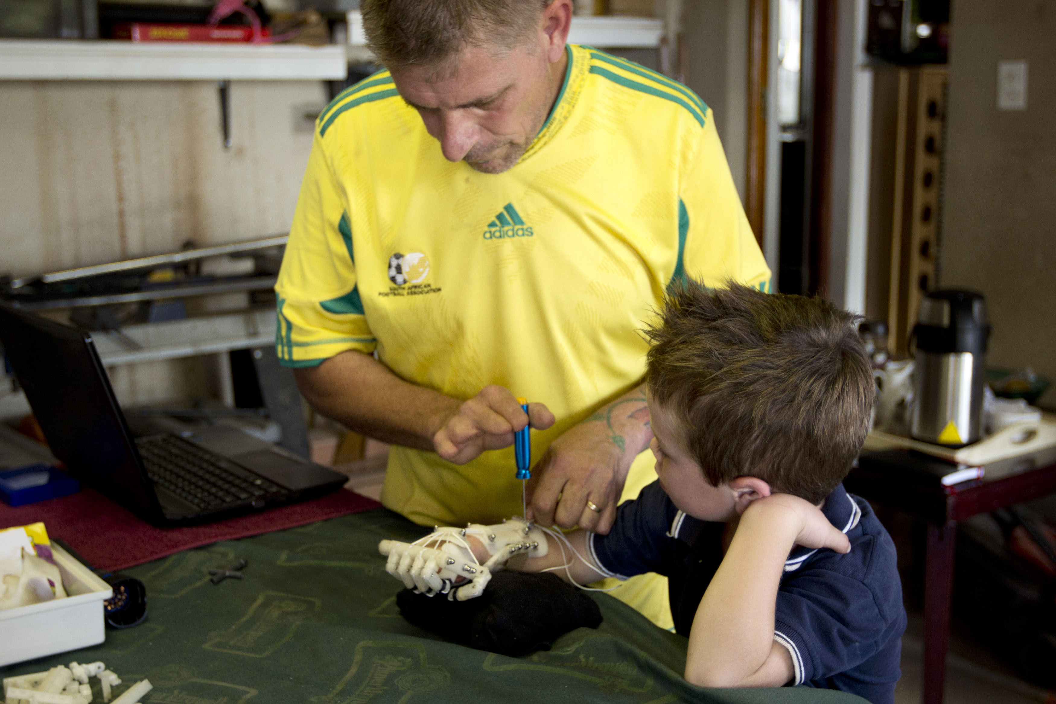 Richard Van As, a South African carpenter who lost a portion of his hand in an accident, assembles a Robohand and fits it to Liam Dippenaar. Liam was born without fingers on his right hand.