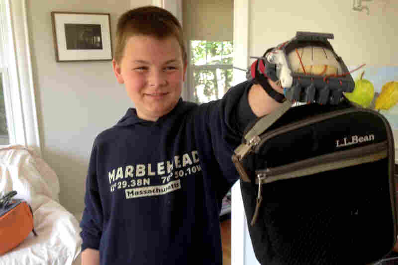 Leon McCarthy, 12, does not have fingers on his left hand. He used a Robohand at school for the first time last month.