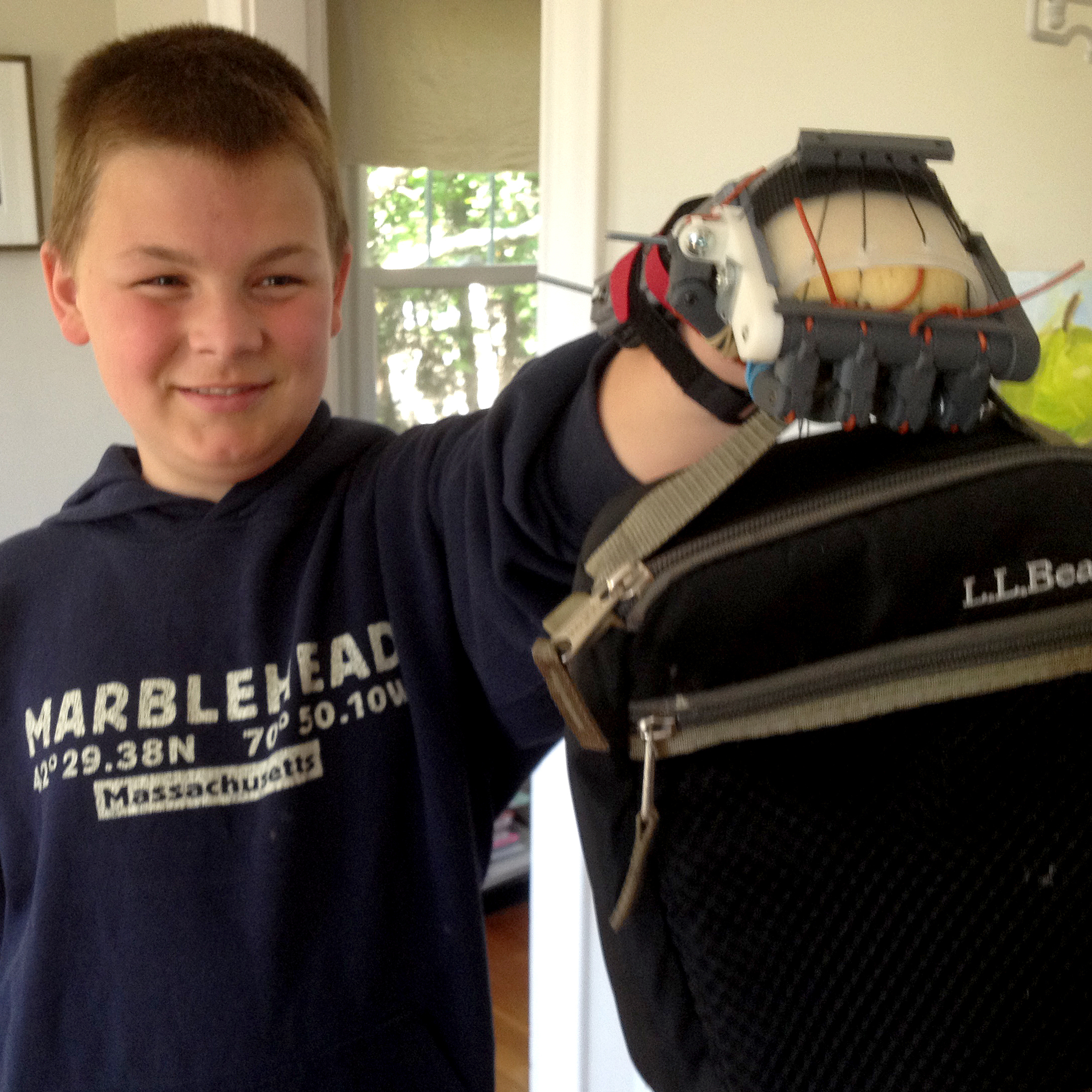 Leon McCarthy, 12, does not have fingers on his left hand. He has used a Robohand at school.
