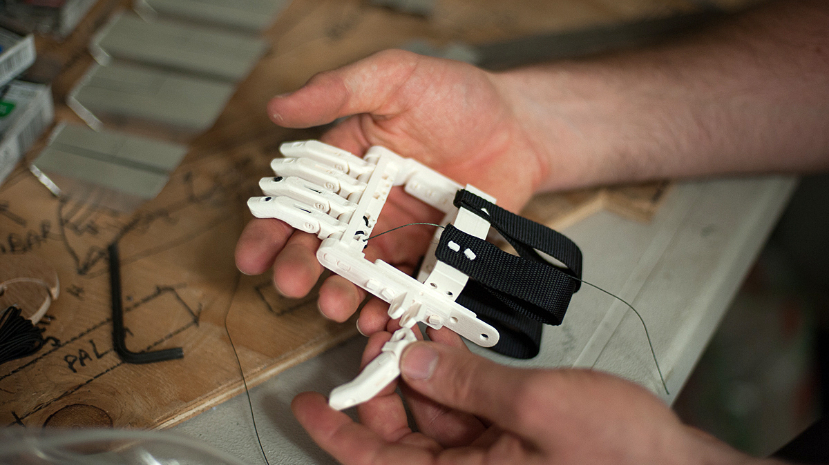 3-D Printer Brings Dexterity To Children With No Fingers