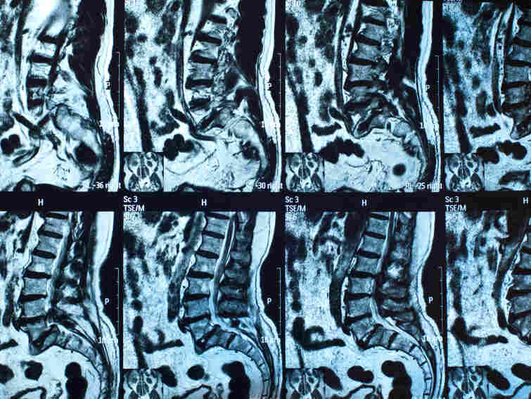 Spinal MRIs similar to these found infections that many