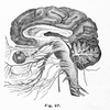The cause of strokes in younger people remains largely a mystery.