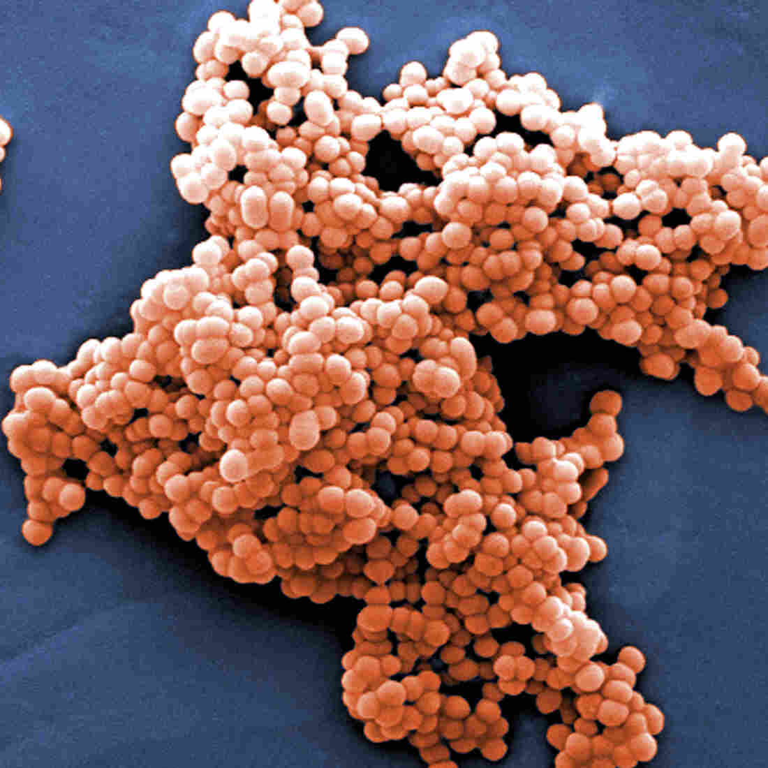 Streptococcus bacteria, like this strain, can be found in our guts.