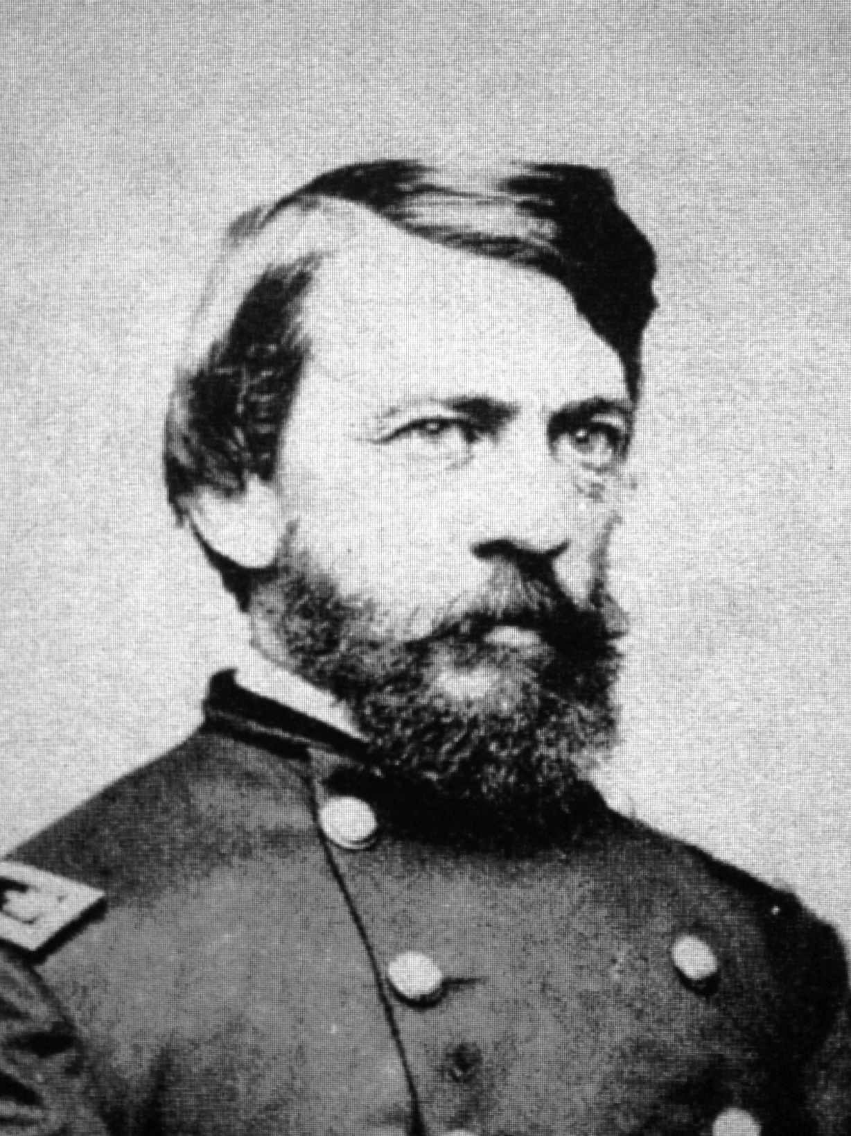 Civil War Surgeon Set The Standard For Battlefield Medicine