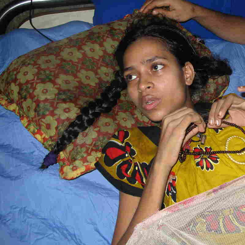 "Rebecca Khatun, a worker at Rana Plaza, lies in a hospital bed. She lost her left leg and right foot in the collapse, which also killed five members of her family. Khatun received $120 and free medical care for her loss --€"" compensation she says won't be enough for what she's been through."