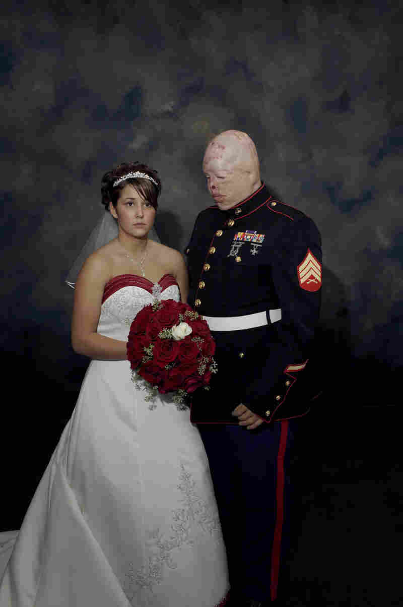 Marine Sgt. Ty Ziegel, wounded in Iraq, pictured with Renee Kline, on their wedding day, Metamora, Il.