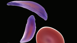Sickle Cell Anemia Is On The Rise Worldwide