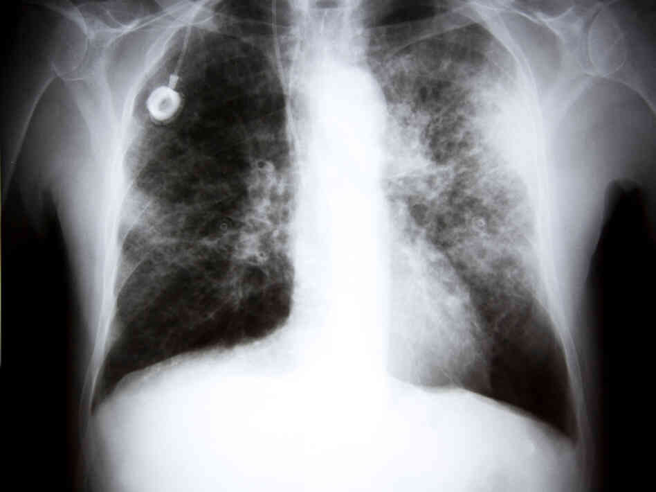 Some images of lung cancer are clear cut. But in many others, a nodule on the screen turns out not to be cancer at all.