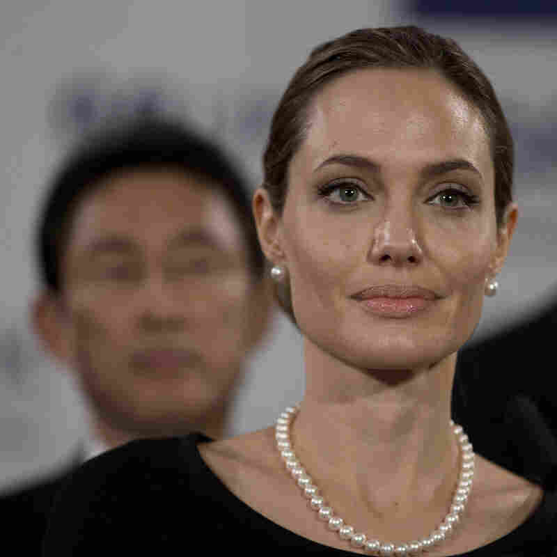 Angelina Jolie took a genetic test to find out her risk of breast cancer, and had a preventive double mastectomy.