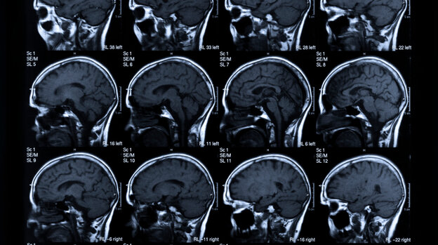 The main goal in stroke treatment: saving brain.