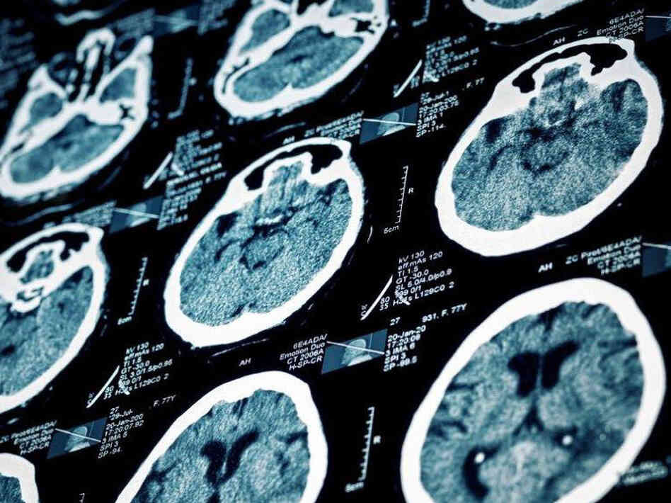 A brain scan followed by quick drug treatment in the right patients can stop a stroke in its tracks.