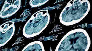 More Stroke Patients Now Get Clot-Busting Drug