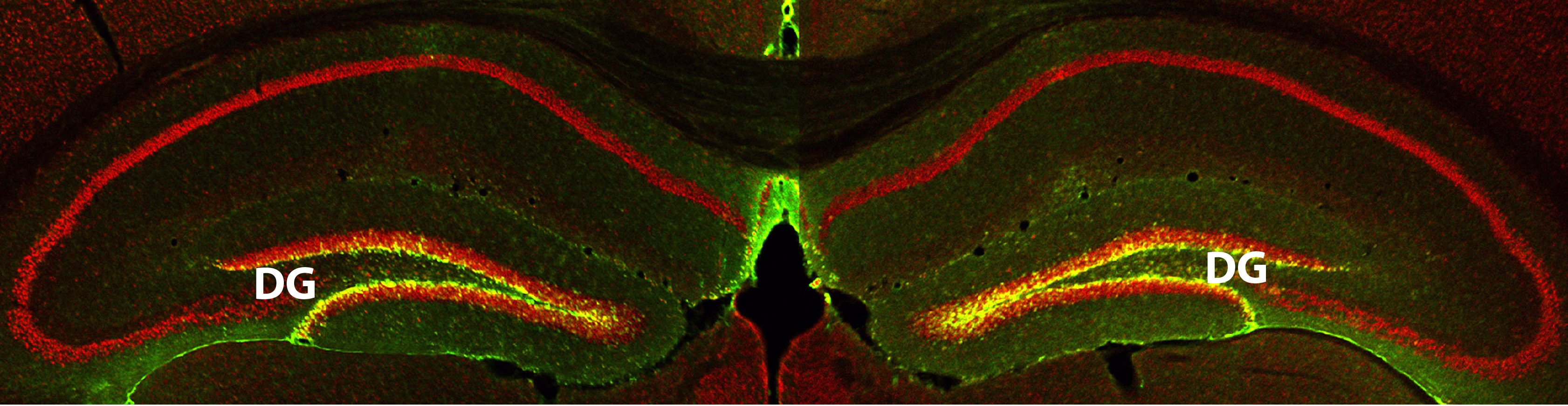 The yellow glow in this slice of hippocampus from a mouse brain represents the increased production of a memory-boosting protein called RbAp48.