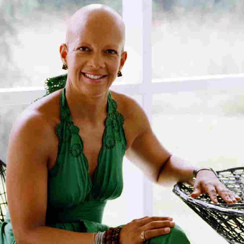 Sheila Bridges embraces her baldness.